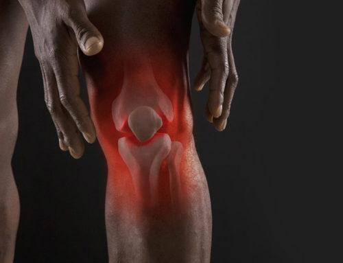 Tratamientos para la artritis y artrosis