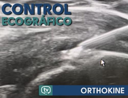 Resultados de Orthokine en casos de Artrosis