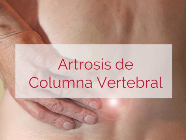 artrosis de columna vertebral