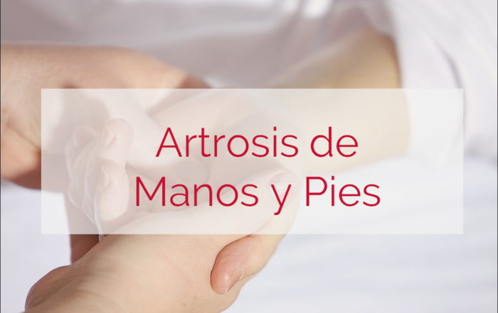 artrosis de manos y pies