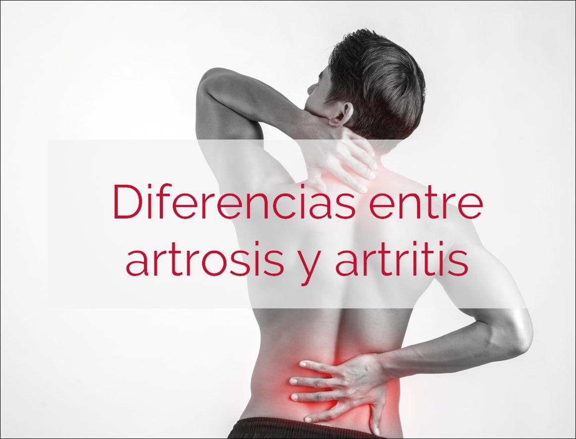 características artritis