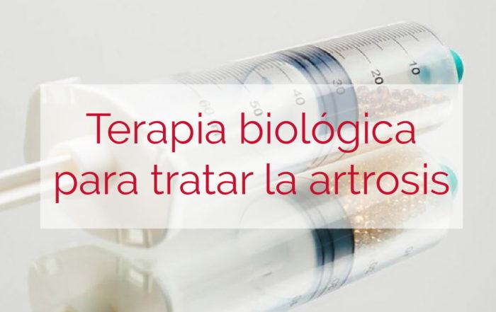Orthokine tratar la artrosis