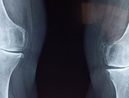 Grados de Artrosis según la valoración radiológica