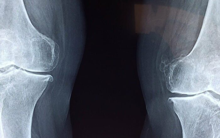 grados de artrosis