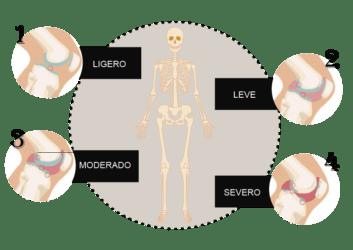 Grados de Artrosis según la valoración radiológica.