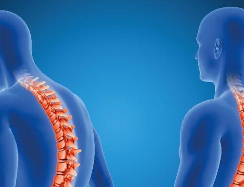 Cómo vivir con artrosis de columna