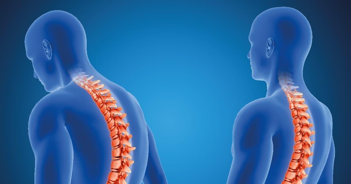 Cómo vivir con artrosis de columna cuando la padeces