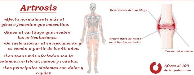 Diferencia entre la artrosis y la artritis caracteristicas