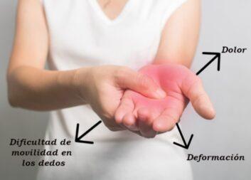 Artrosis en gente Joven