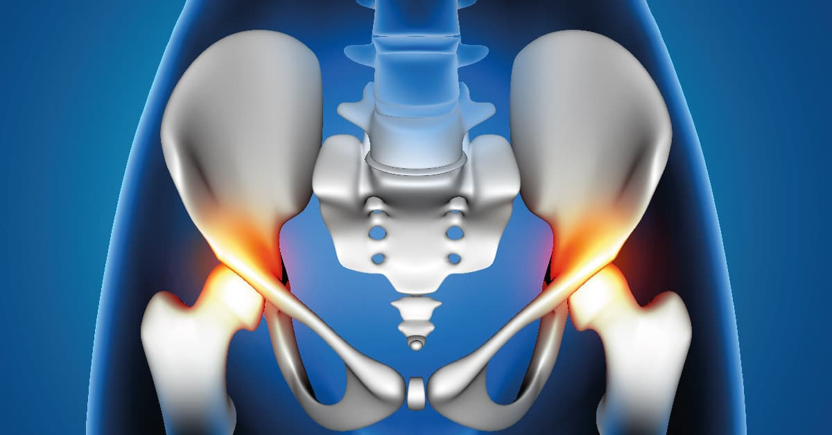 lista de síntomas de la artrosis de cadera