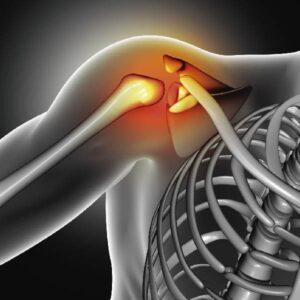 dolor artritis reumatoide